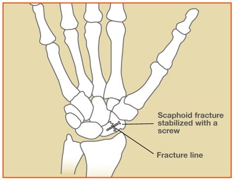 Scaphoid Fractures - Symptoms and Treatment - The Hand Society Fractured Wrist Treatment