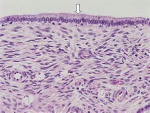 Papillary Cystadenoma Pathology Outlines by Extrahepatic Bile Ducts Superpage