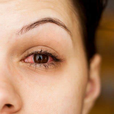 pink eye images pink eye learn conjunctivitis treatments home remedies