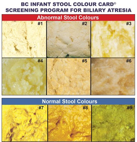 Color Of Newborn Stool by Biliary Atresia