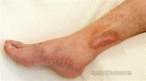 skin ulcer skin ulcer pictures symptoms causes stages prevention treatment