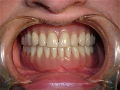 dentiera mobile costo implantologia sociale studio dentistico a chioggia e a