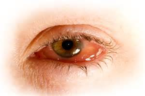 Homeopathy for conjunctivitis homeopathy plus