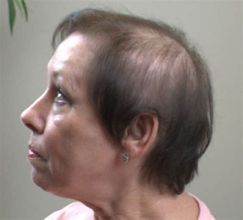 haircuts for extreme hair loss in woman receding hairline 157 best images about hair on pinterest hairstyles