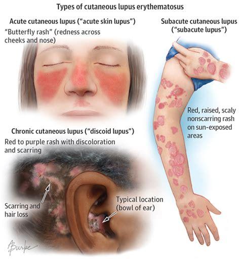 best 25 discoid lupus erythematosus ideas on discoid lupus types of lupus and