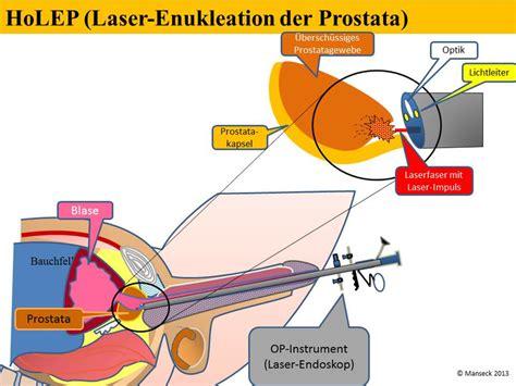 tur prostata klinikum ingolstadt gmbh die laser enukleation bei
