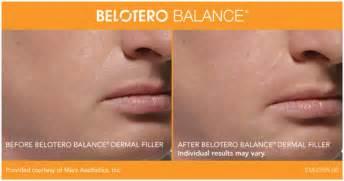 belotero balance dermal filler dermal filler provides belotero balance 174 dermal filler winston salem