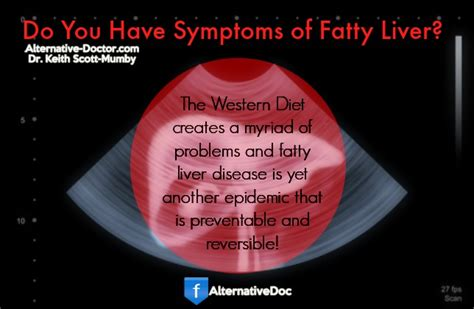 Can You Detox A Liver That Has Had 60 Removed by Fatty Liver Disease Diet Improve Your Liver Health