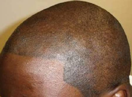 tattooed hair on bald head 10 craziest new types of tattoos eye teeth