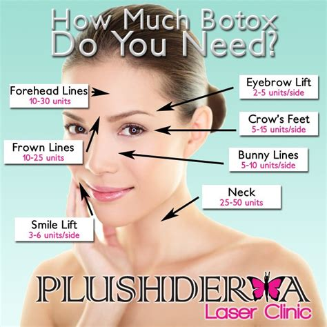 botox injection for migraines diagram 17 best ideas about botox injection on