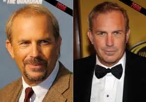 hair plug versus transplant celebrity quot growing quot popularity in celebrity hair transplants
