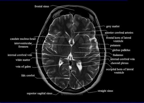 cross sectional imaging anatomy thorax this