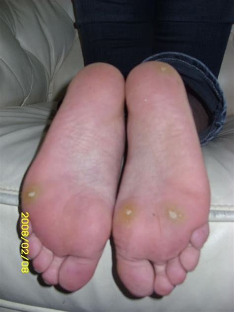 Planters Wart Hpv by Plantar Warts Cervical Cancer Doctor Answers On