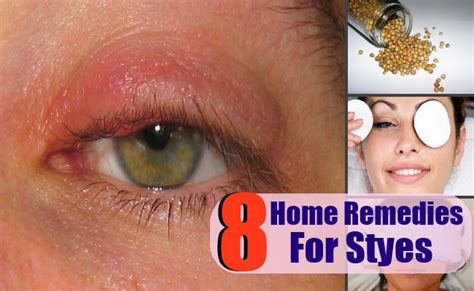 how to treat a stye at home ideaforgestudios