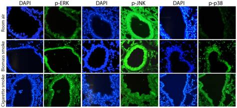 Biomars Lung immunofluorescent analysis of mapk signaling in the lungs of biomass or