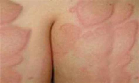 antistaminico per allergia alimentare orticaria pigmentosa orticaria pigmentosa bambini ed adulti