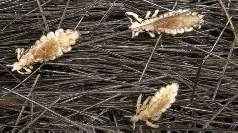 Lice Ladies Reveal Their Itchy Little Secrets ? Mother Jones