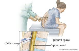 epidural placement for labor