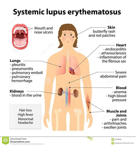 systemic lupus erythematosus diagram www pixshark