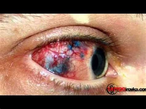 infected tattoo real or fake cystbursting com boil popping surgery doovi