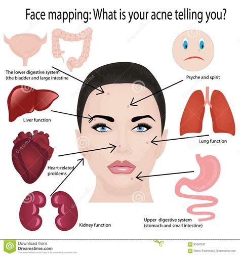 mapping acne mapping stock vector image of blemish treatment 91047241