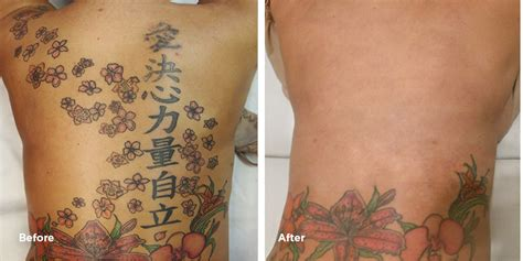 where can i get tattoo removal cream 100 laser removal of