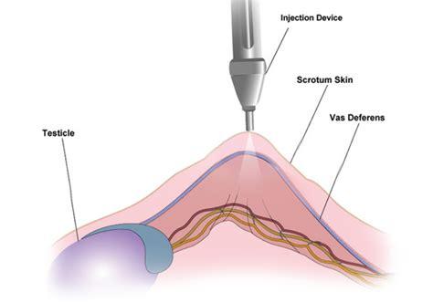 about vasectomy no needle no scalpel toronto ontario