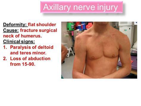 Symptoms Of Nerve Damage After C Section 25 best ideas about axillary nerve on muscles of limb neuromuscular therapy