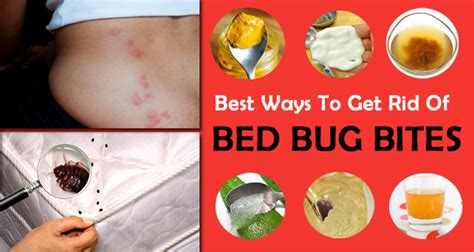 rid  bed bug bites itchiness fast