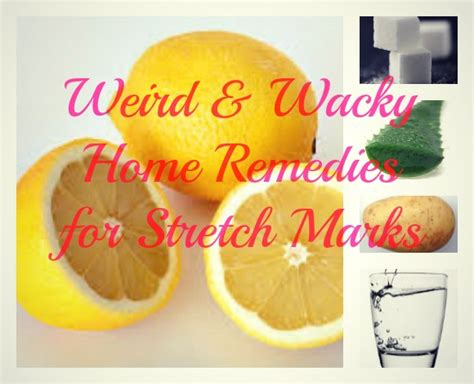and wacky home remedies for stretch marks