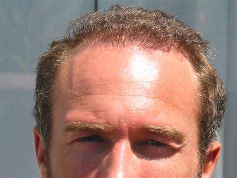 mens hairstyles for frontal baldness những kiểu đầu ph 249 hợp với đ 224 n 244 ng 237 t t 243 c đại kỷ nguy 234 n