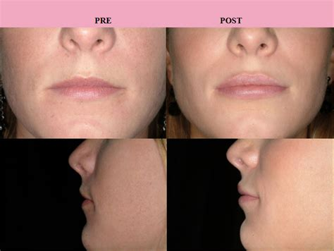 Augmentation Fill by Lip Augmentation Or Enhancement With Injectables Or