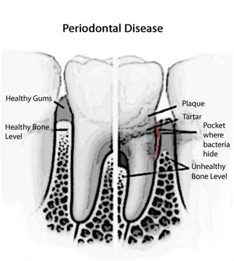 Symptons Of And Gum Detox by Everything You Need To About Gum Diseases Dr