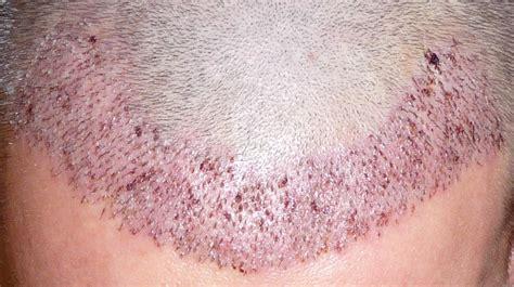 wann haare färben haartransplantation forum haartransplantation allgemein