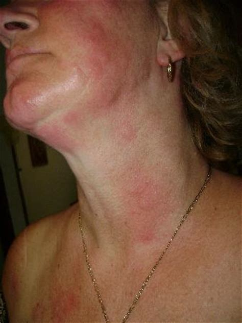 bed bug bites on neck bed bug bites on face and neck major rash picture of