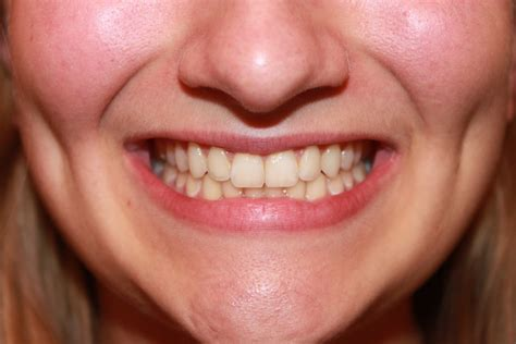 Exercising Teeth The Way by How Sharks Could Help Us Regrow Our Own Human Teeth