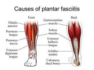 plantar fasciitis symptoms causes and treatment