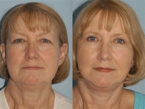 facelifts for women over 60 best 11 eyelid surgery blepharoplasty before after