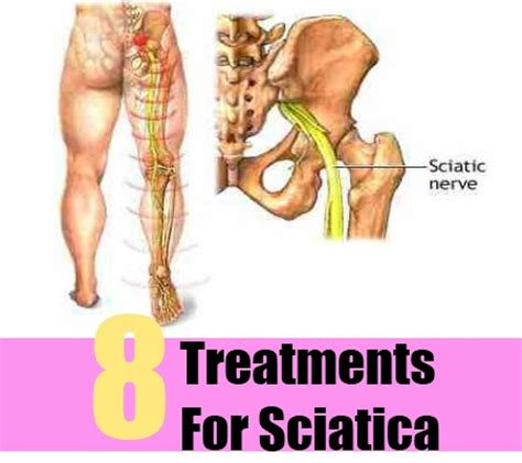 7 highly effective cures for sciatica how to