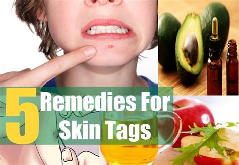 5 home remedies for skin tags treatment and cure