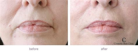 hairstyles for nasalfabial folds nasolabial folds before and after dermal fillers before