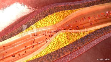 Nesco Colesterol la dieta mediterr 225 nea te ayuda a bajar el colesterol en la