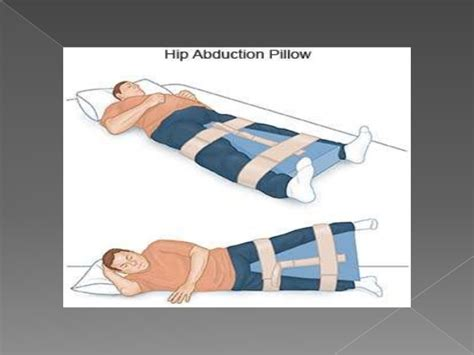 hip abduction pillow after hip surgery physiotherapy rehab after total hip replacement