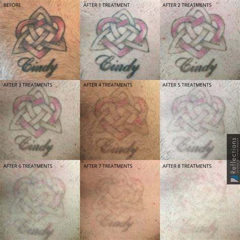 nj tattoo removal patient pink and black chest removal laser