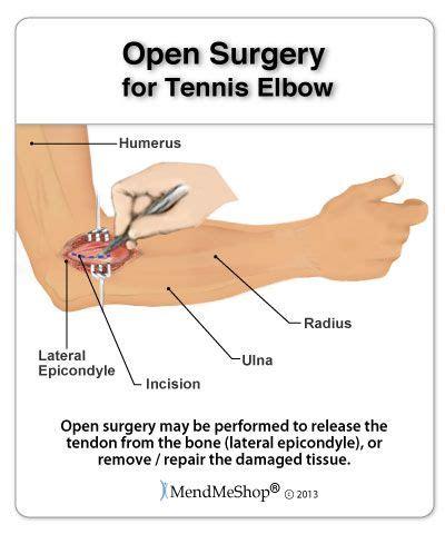best treatment for tennis tennis open surgery 90 of suffering