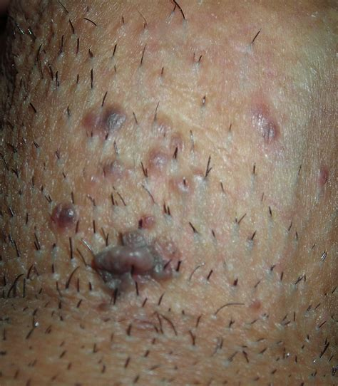 genital wart is this genital warts skin tags or molluscum contagiosum