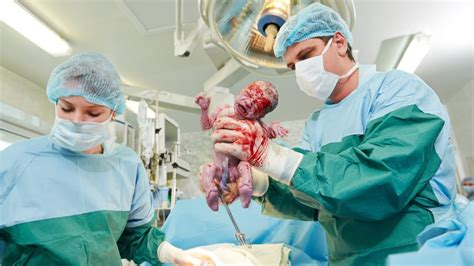 c sections video c sections giving birth by cesarean section c section