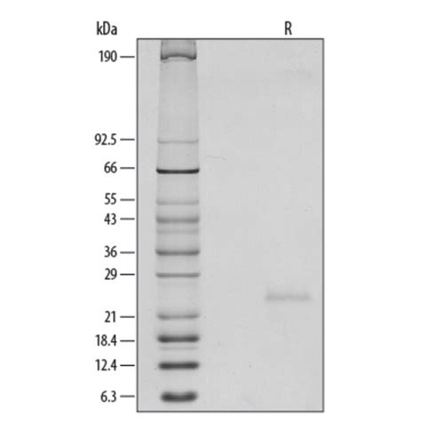 r protein code r d systems mouse il 6 recombinant protein 5ug carrier