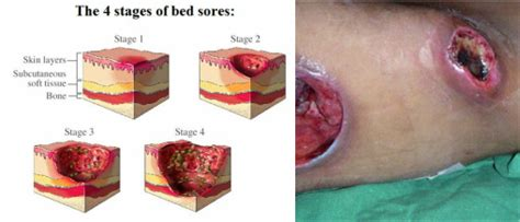 how to prevent bed sores ripple mattress for bed sore and pressure sore rent buy