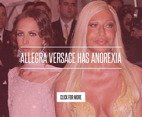 Versace Receiving Treatment by Allegra Versace Has Anorexia Lifestyle
